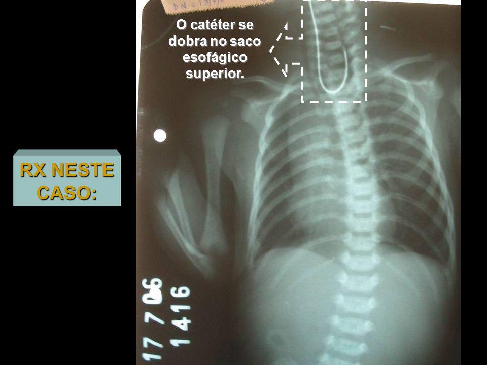 O catéter se dobra no saco esofágico superior.