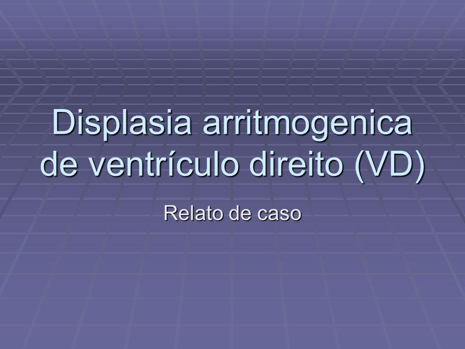 Displasia arritmogenica de ventrículo direito (VD)