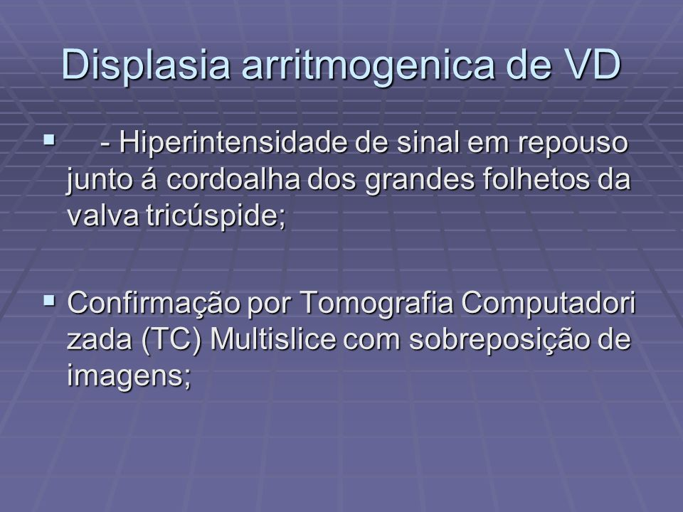 Displasia arritmogenica de VD