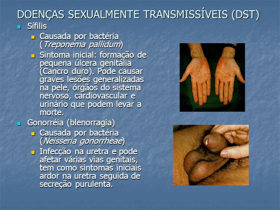 DOENÇAS SEXUALMENTE TRANSMISSÍVEIS (DST)