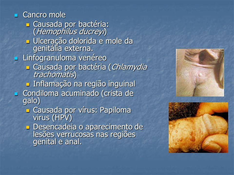Cancro mole Causada por bactéria: (Hemophilus ducreyi) Ulceração dolorida e mole da genitália externa.