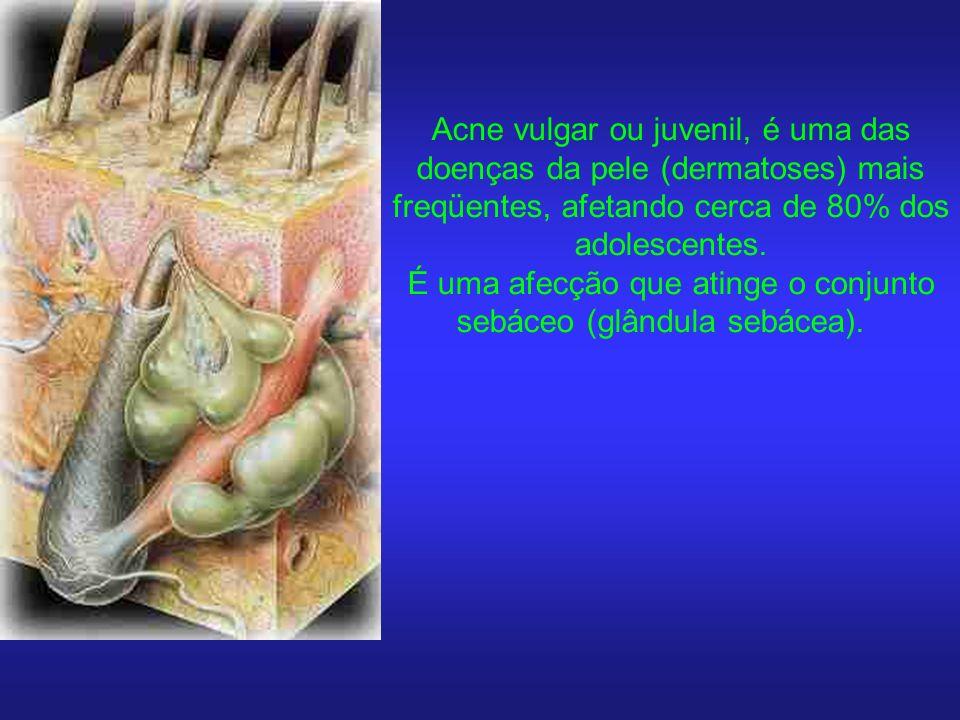É uma afecção que atinge o conjunto sebáceo (glândula sebácea).