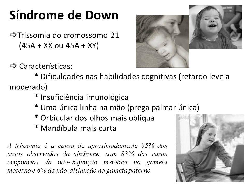 Síndrome de Down Trissomia do cromossomo 21 (45A + XX ou 45A + XY)