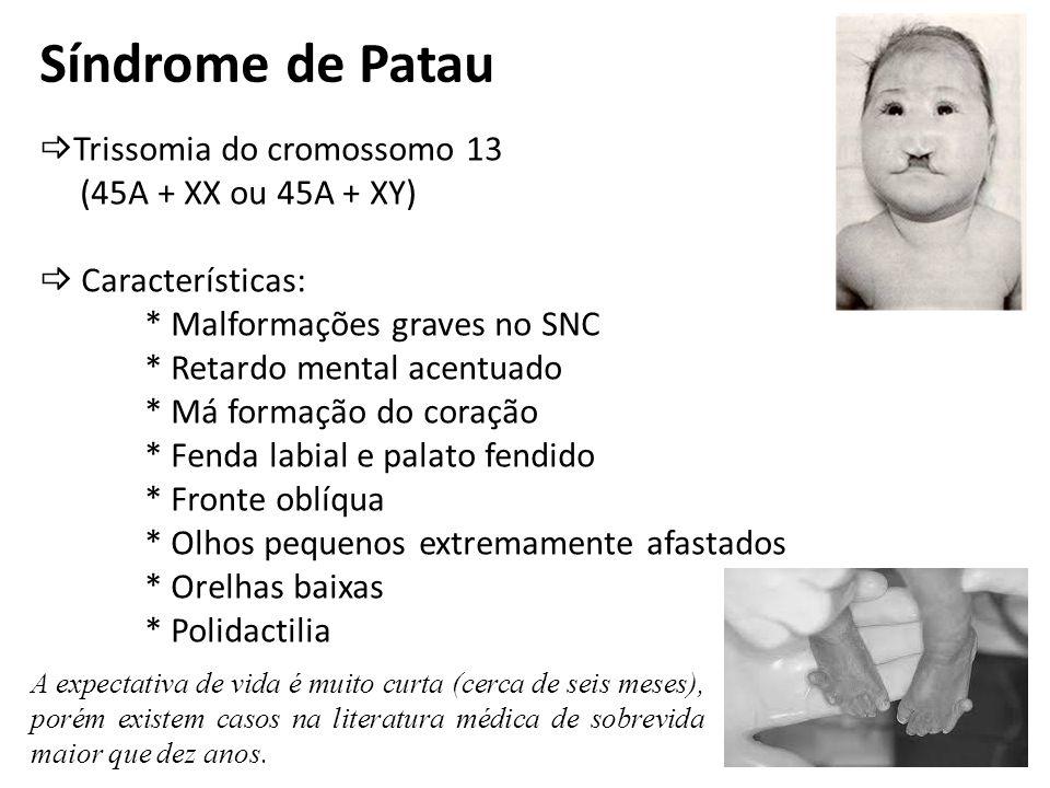 Síndrome de Patau Trissomia do cromossomo 13 (45A + XX ou 45A + XY)