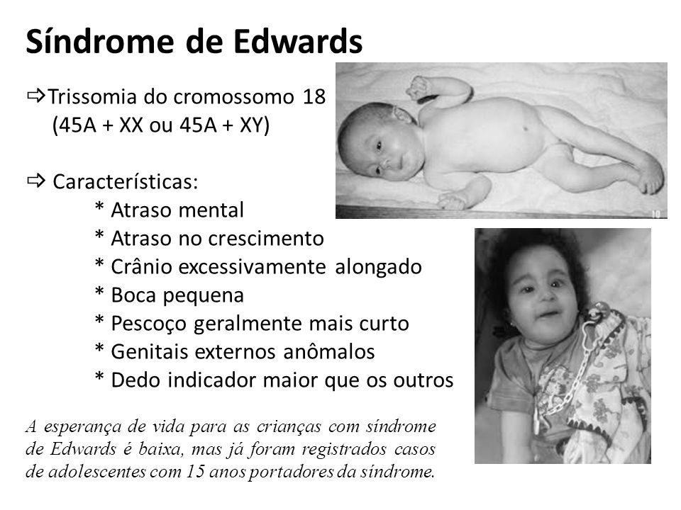 Síndrome de Edwards Trissomia do cromossomo 18 (45A + XX ou 45A + XY)