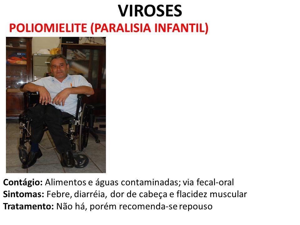 VIROSES POLIOMIELITE (PARALISIA INFANTIL)