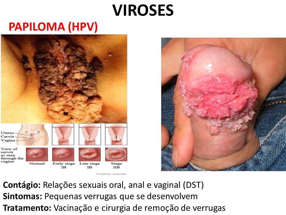 VIROSES PAPILOMA (HPV)