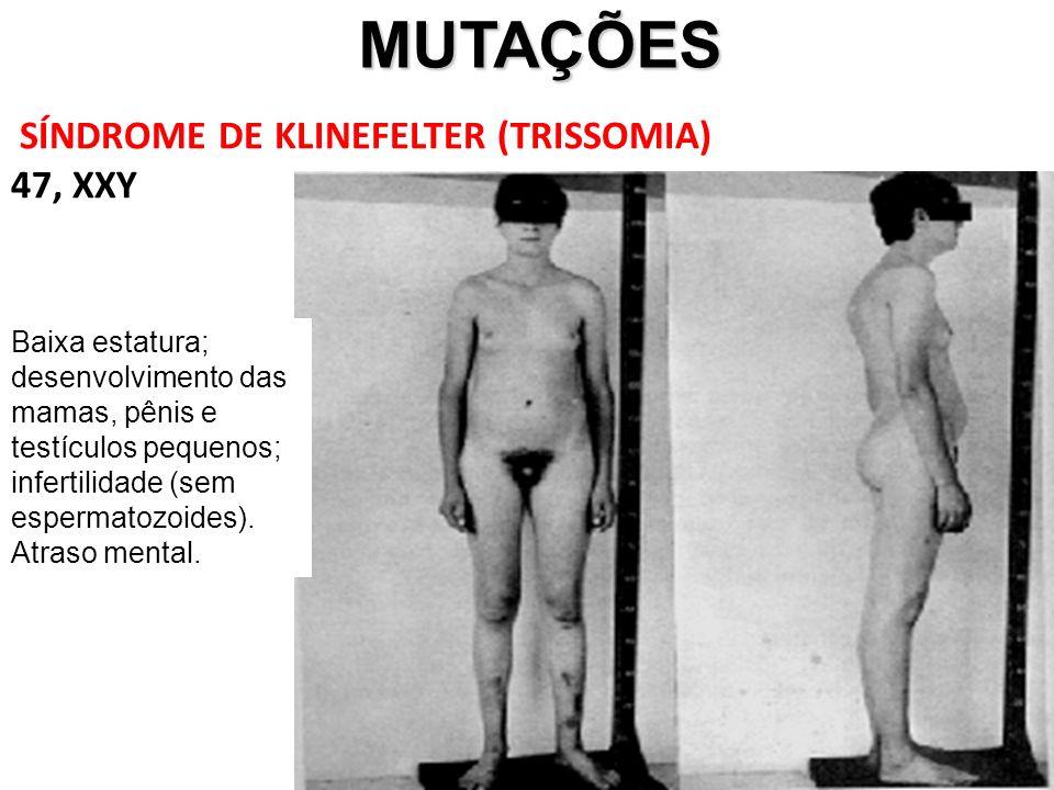 MUTAÇÕES SÍNDROME DE KLINEFELTER (TRISSOMIA) 47, XXY