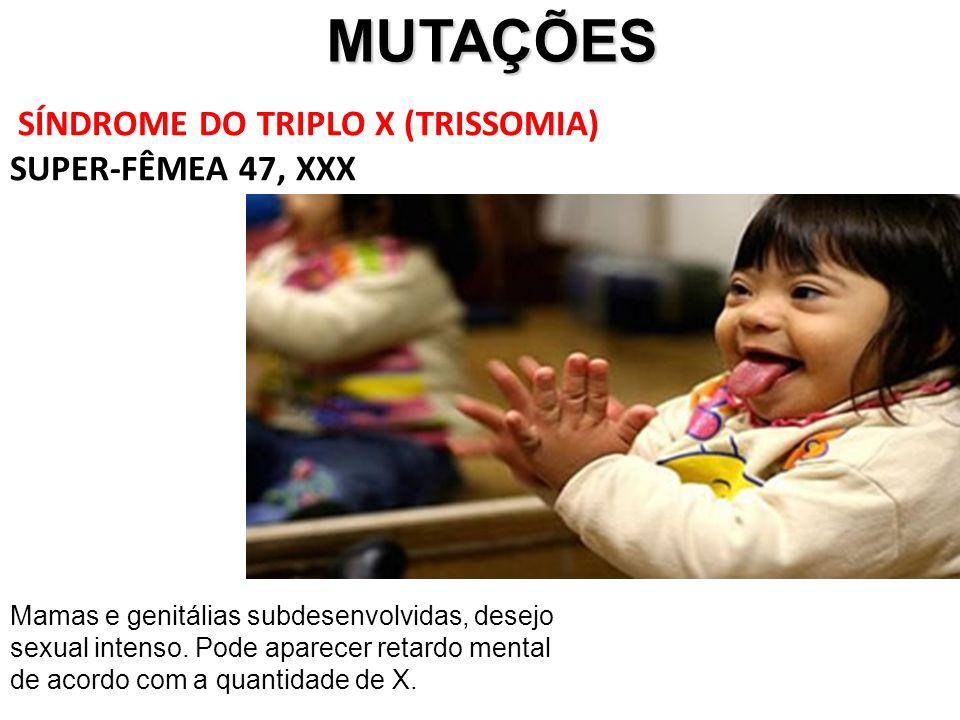 MUTAÇÕES SÍNDROME DO TRIPLO X (TRISSOMIA) SUPER-FÊMEA 47, XXX