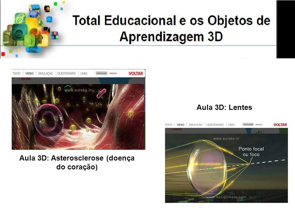 Aula 3D: Asterosclerose (doença do coração)