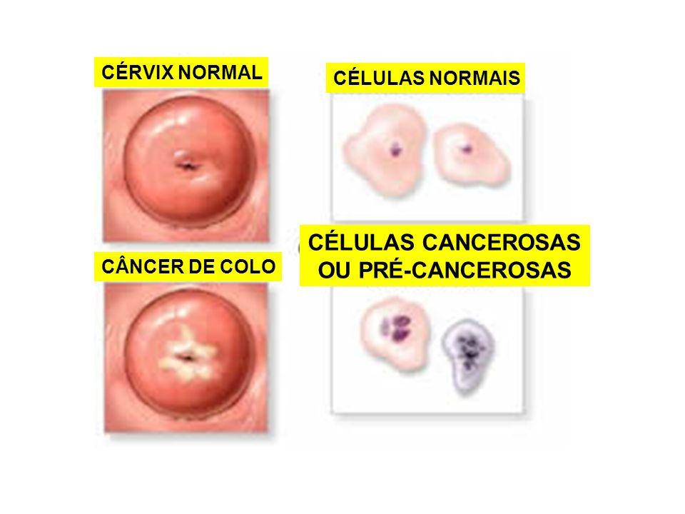CÉLULAS CANCEROSAS OU PRÉ-CANCEROSAS