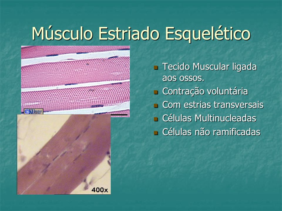 Músculo Estriado Esquelético