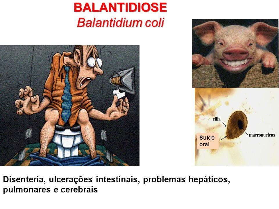 BALANTIDIOSE Balantidium coli
