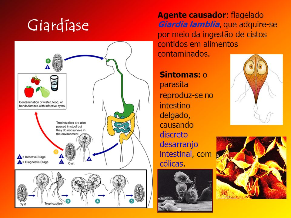 Agente causador: flagelado Giardia lamblia, que adquire-se por meio da ingestão de cistos contidos em alimentos contaminados.