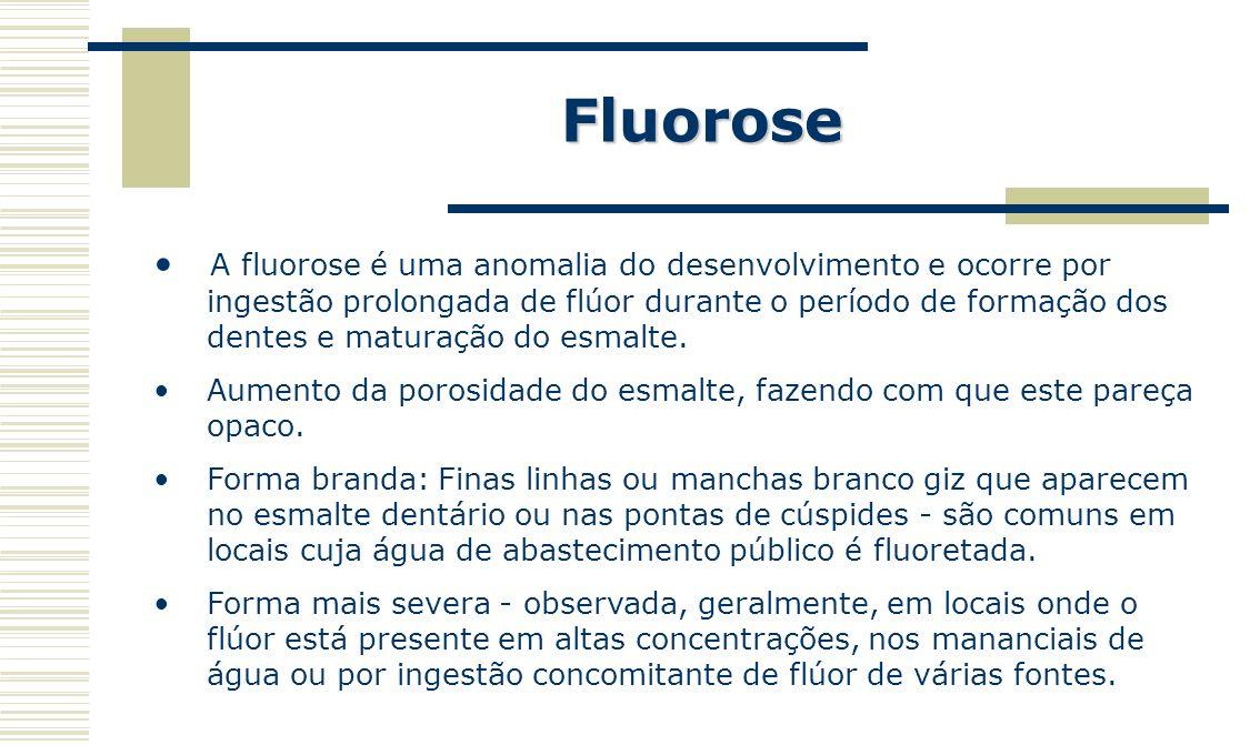 Fluorose