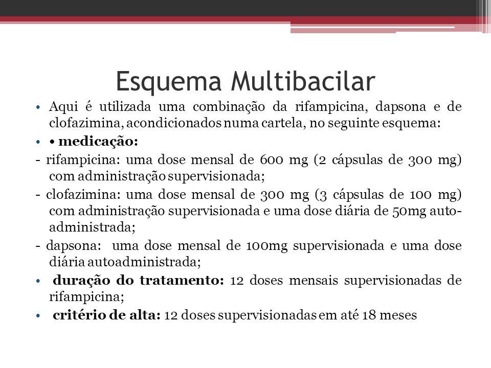 Esquema Multibacilar Aqui é utilizada uma combinação da rifampicina, dapsona e de clofazimina, acondicionados numa cartela, no seguinte esquema: