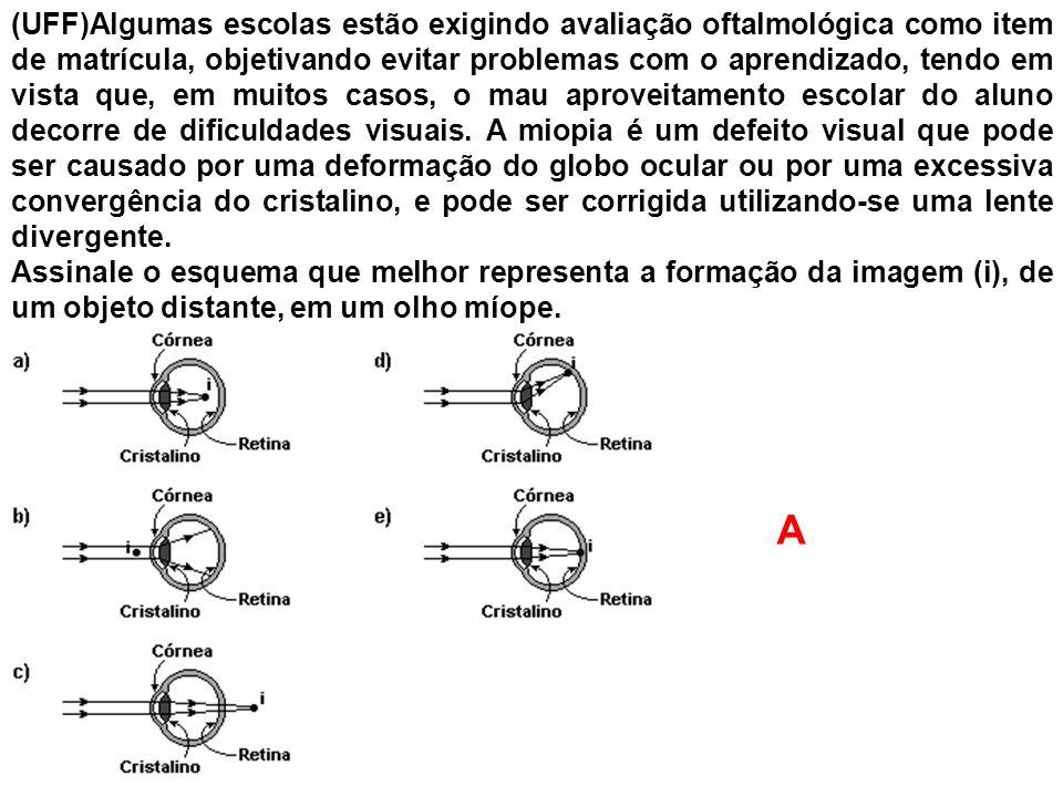 (UFF)Algumas escolas estão exigindo avaliação oftalmológica como item de matrícula, objetivando evitar problemas com o aprendizado, tendo em vista que, em muitos casos, o mau aproveitamento escolar do aluno decorre de dificuldades visuais. A miopia é um defeito visual que pode ser causado por uma deformação do globo ocular ou por uma excessiva convergência do cristalino, e pode ser corrigida utilizando-se uma lente divergente.