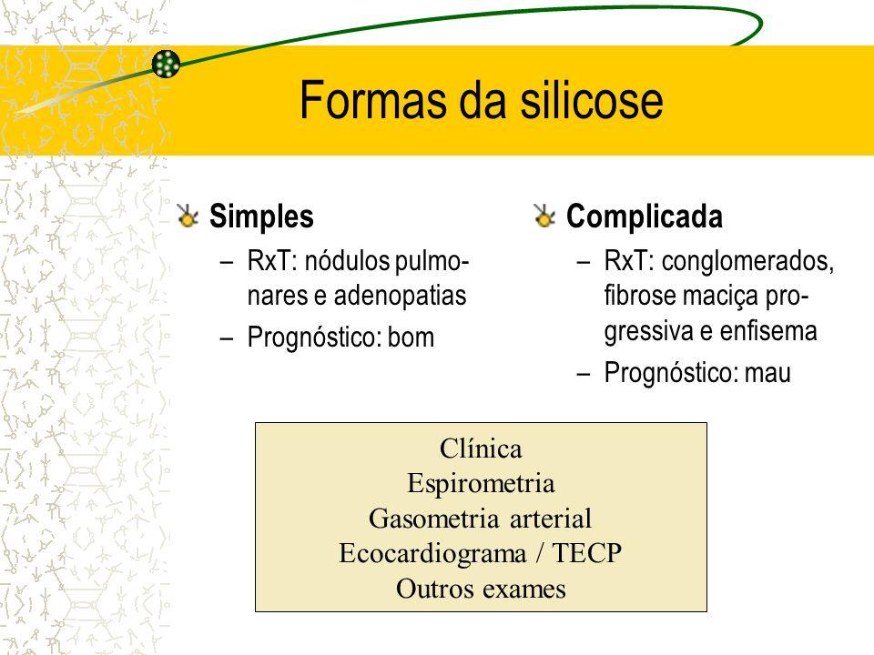 Formas da silicose Simples Complicada