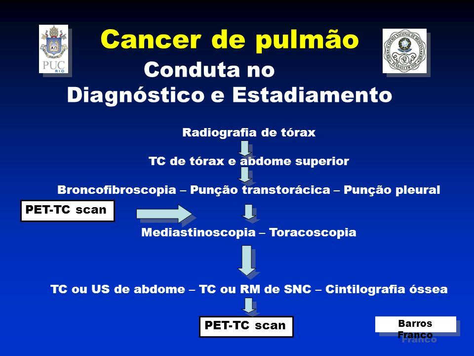 Cancer de pulmão Conduta no Diagnóstico e Estadiamento