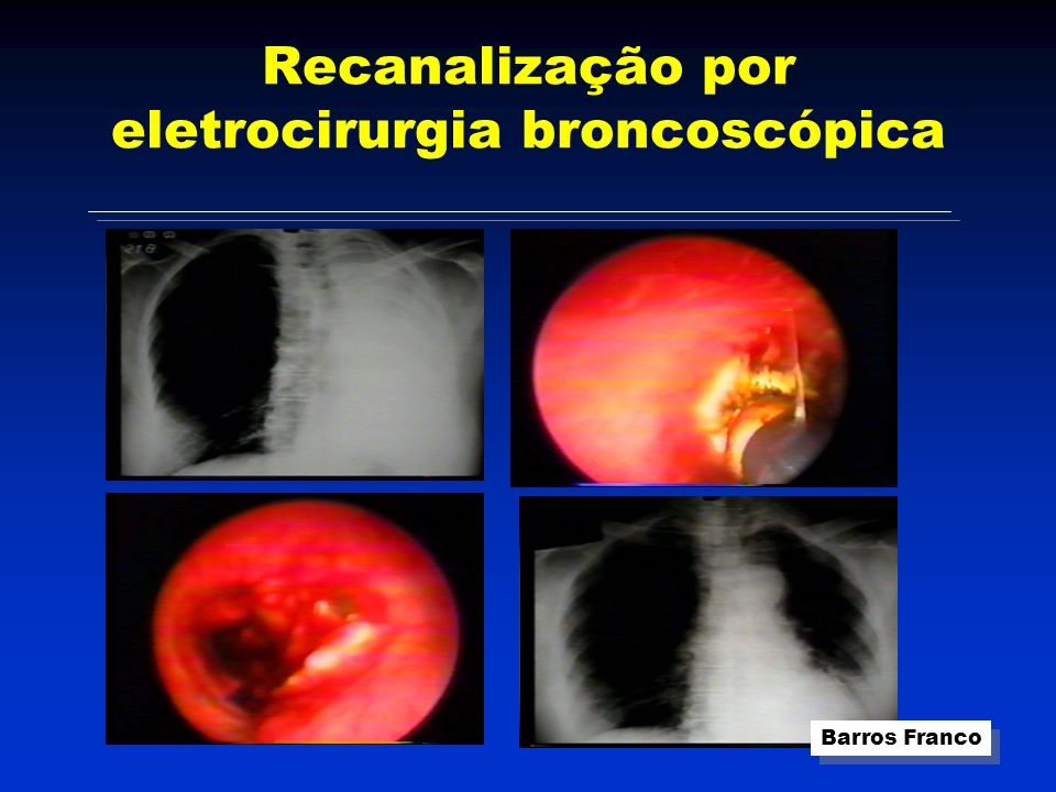 Recanalização por eletrocirurgia broncoscópica