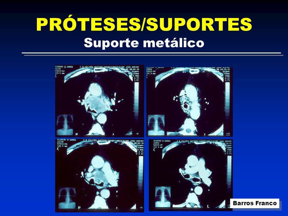 PRÓTESES/SUPORTES Suporte metálico