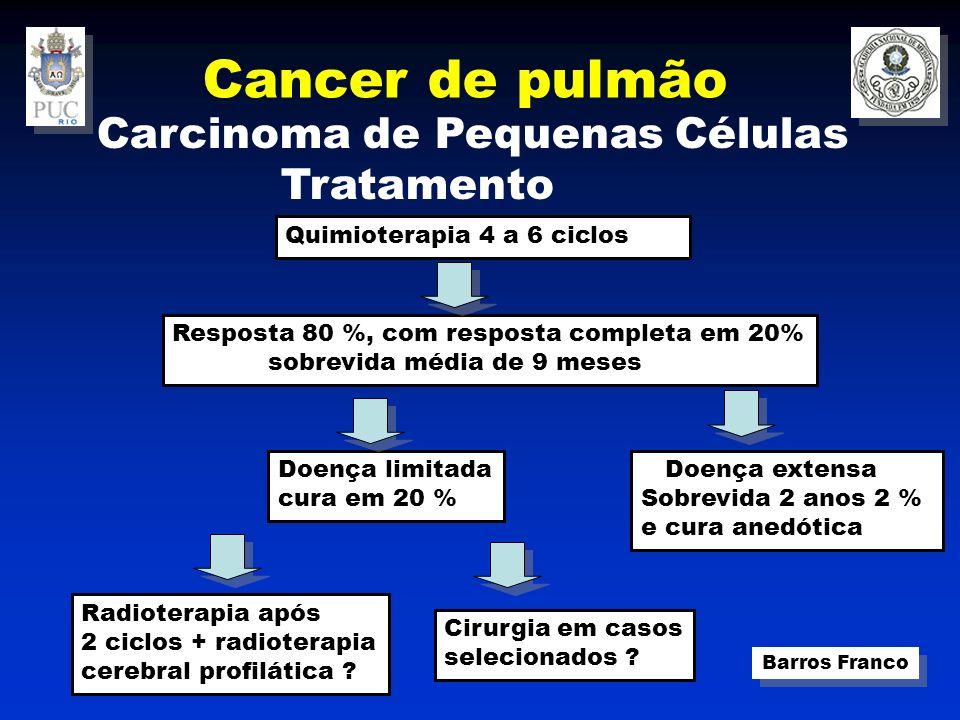 Cancer de pulmão Carcinoma de Pequenas Células Tratamento
