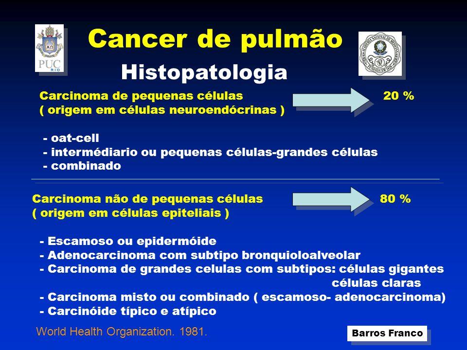 Cancer de pulmão Histopatologia Carcinoma de pequenas células 20 %