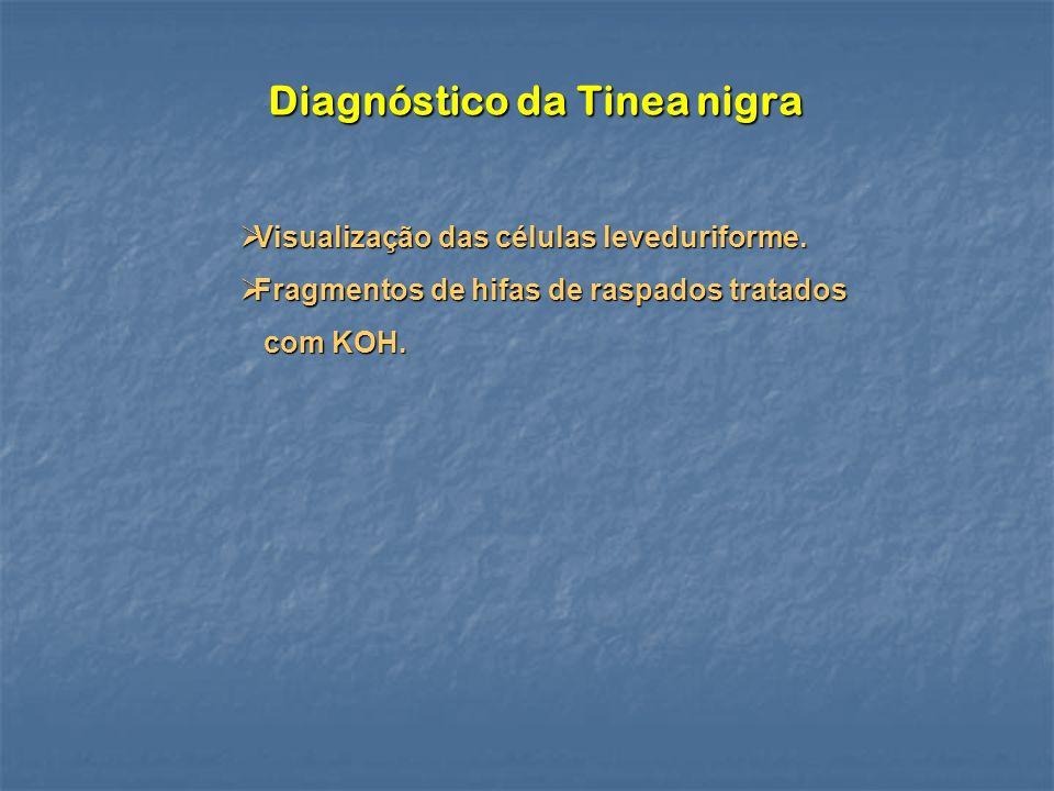 Diagnóstico da Tinea nigra