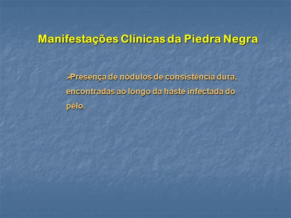 Manifestações Clínicas da Piedra Negra
