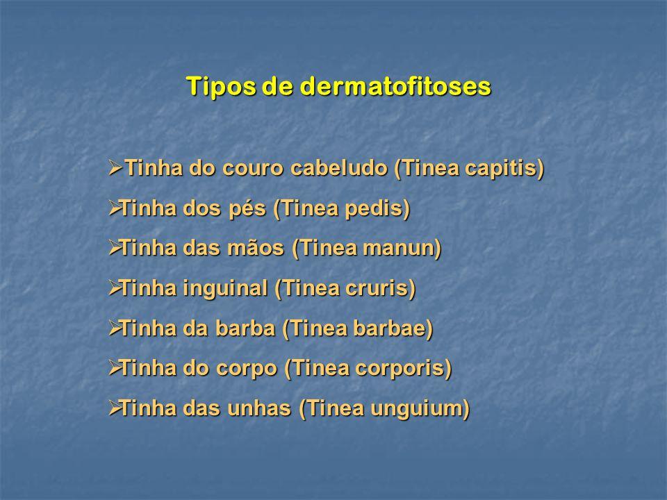 Tipos de dermatofitoses
