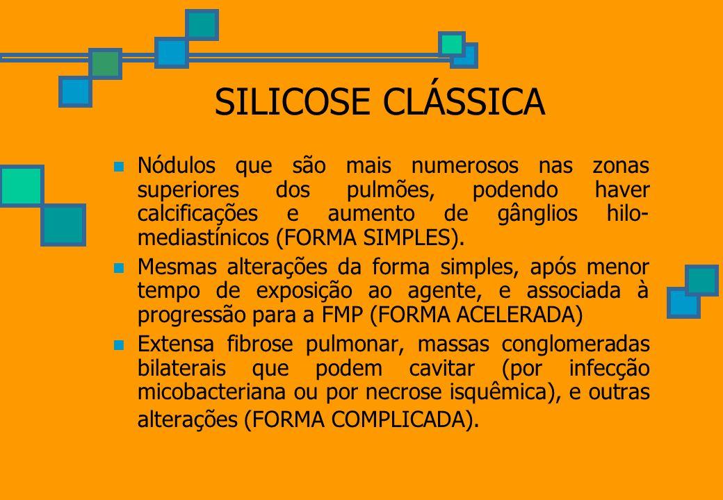 SILICOSE CLÁSSICA