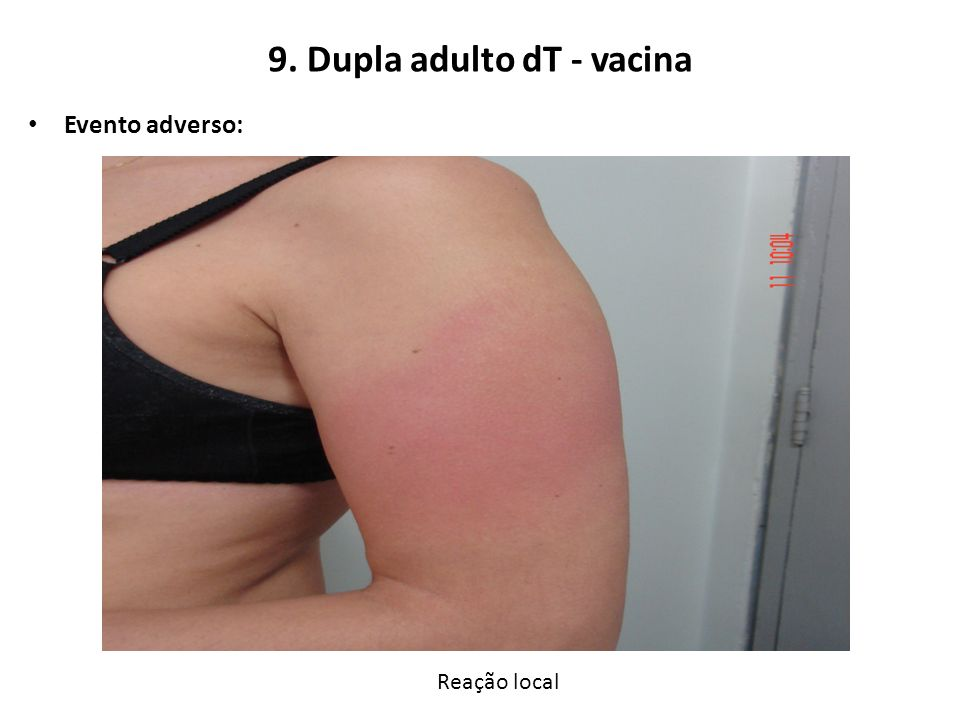 9. Dupla adulto dT - vacina