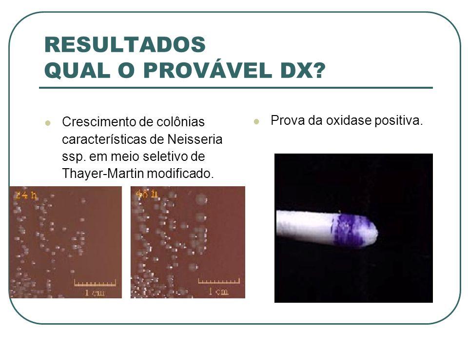 RESULTADOS QUAL O PROVÁVEL DX