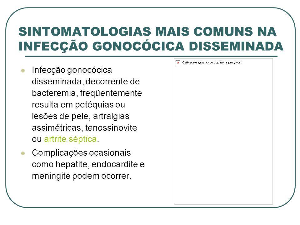 SINTOMATOLOGIAS MAIS COMUNS NA INFECÇÃO GONOCÓCICA DISSEMINADA
