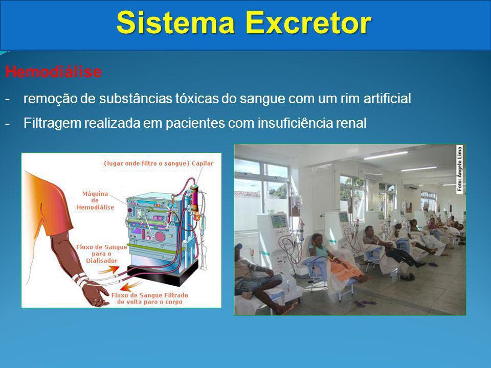 Sistema Excretor Hemodiálise