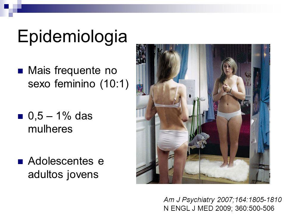 Epidemiologia Mais frequente no sexo feminino (10:1)