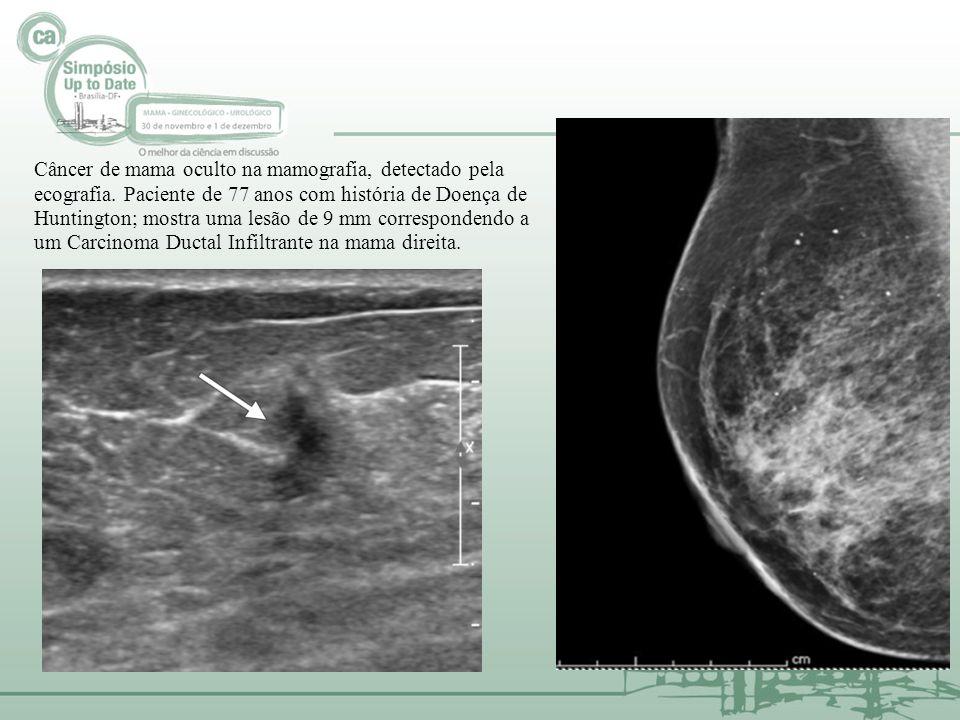 Câncer de mama oculto na mamografia, detectado pela ecografia