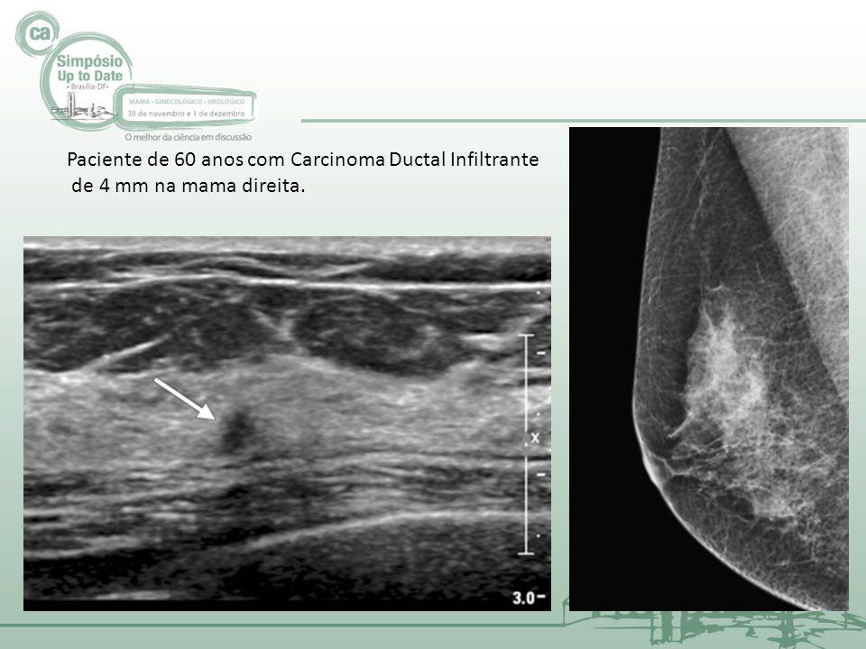 Paciente de 60 anos com Carcinoma Ductal Infiltrante