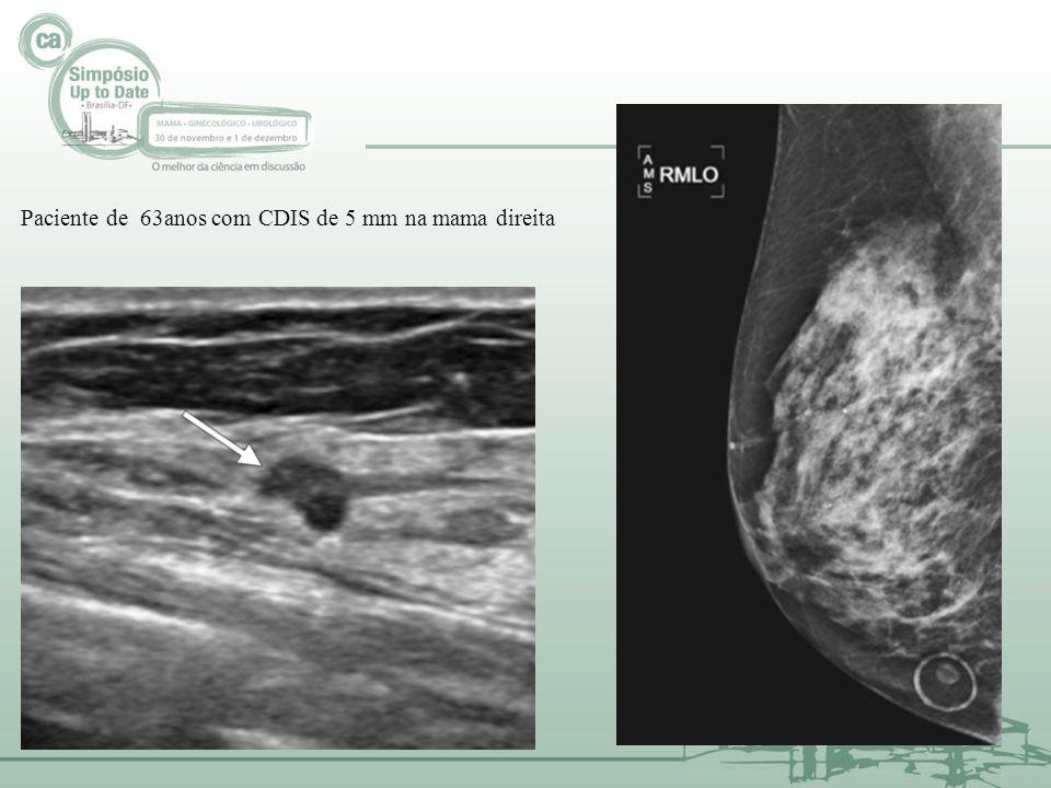 Paciente de 63anos com CDIS de 5 mm na mama direita