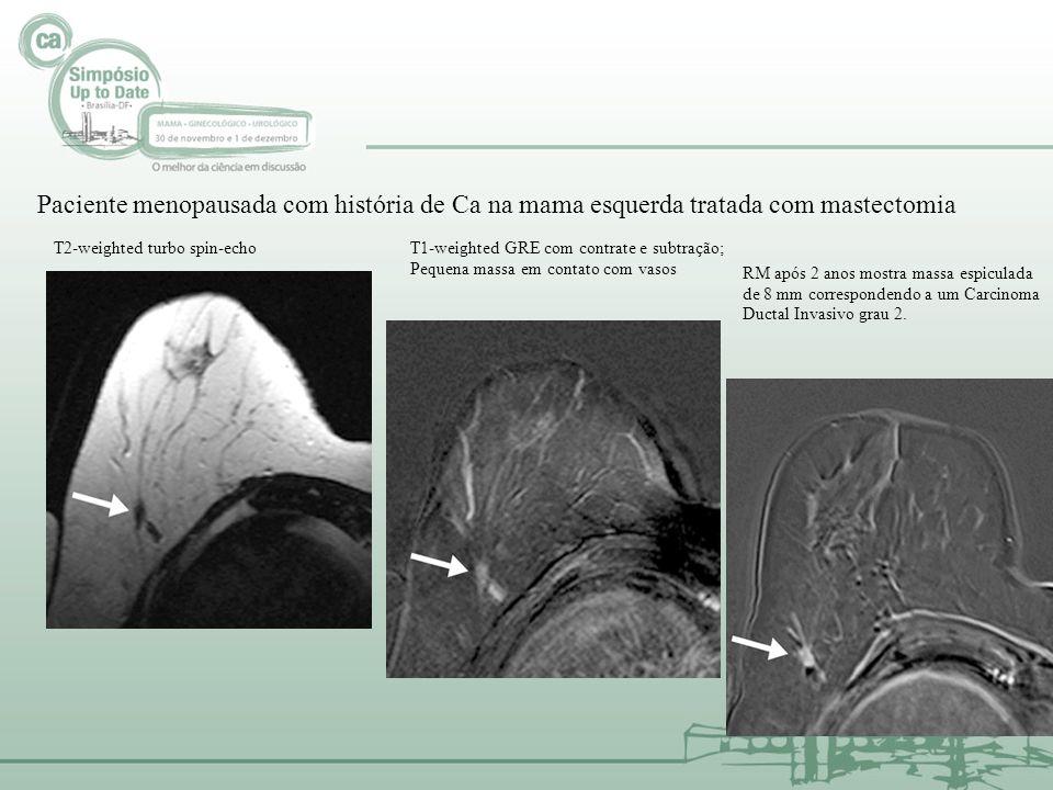 Paciente menopausada com história de Ca na mama esquerda tratada com mastectomia