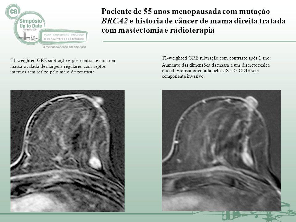 Paciente de 55 anos menopausada com mutação BRCA2 e historia de câncer de mama direita tratada com mastectomia e radioterapia