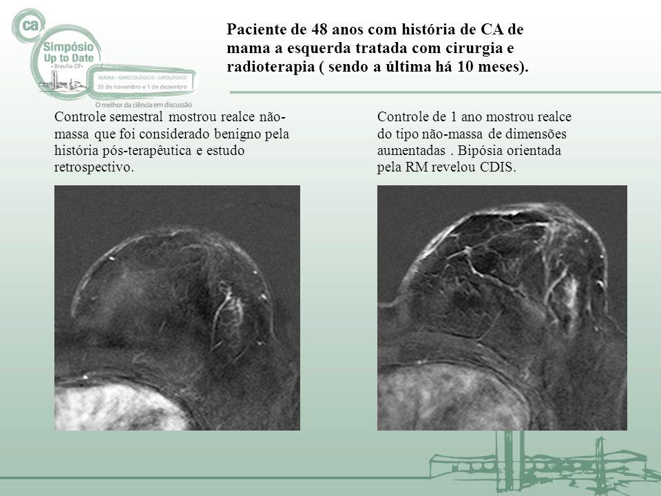 Paciente de 48 anos com história de CA de mama a esquerda tratada com cirurgia e radioterapia ( sendo a última há 10 meses).
