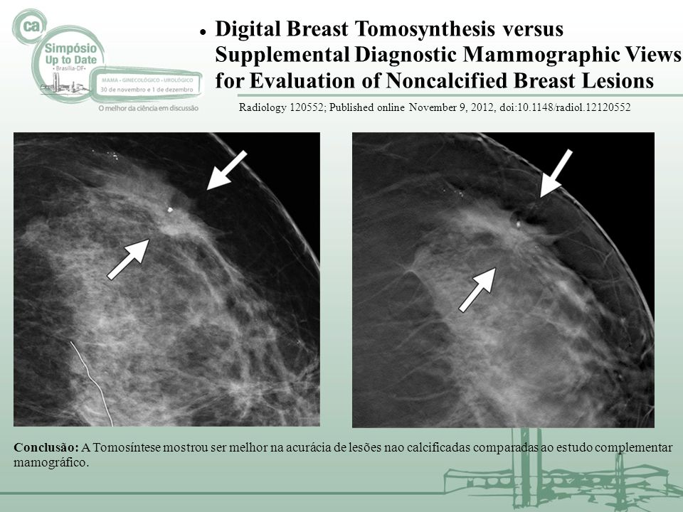 Digital Breast Tomosynthesis versus Supplemental Diagnostic Mammographic Views for Evaluation of Noncalcified Breast Lesions