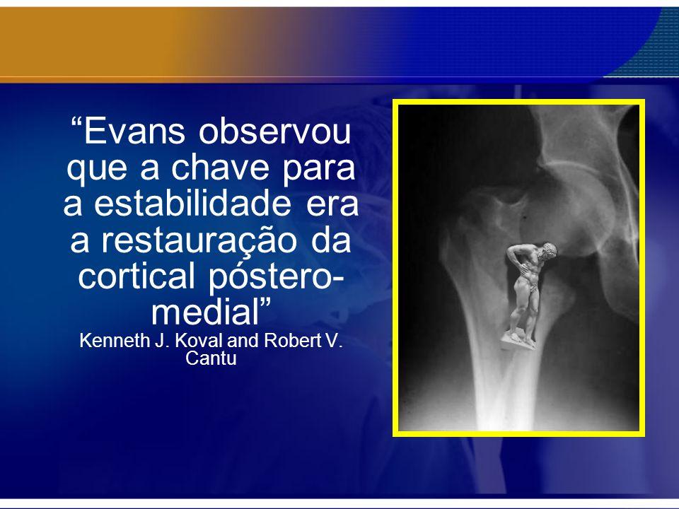 Evans observou que a chave para a estabilidade era a restauração da cortical póstero-medial Kenneth J.