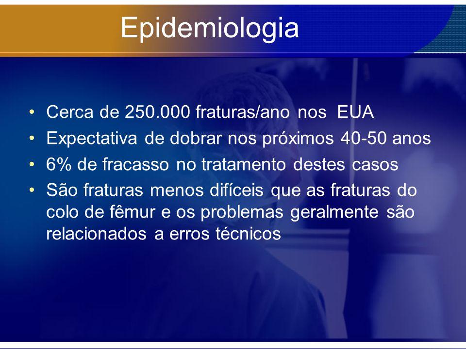 Epidemiologia Cerca de 250.000 fraturas/ano nos EUA