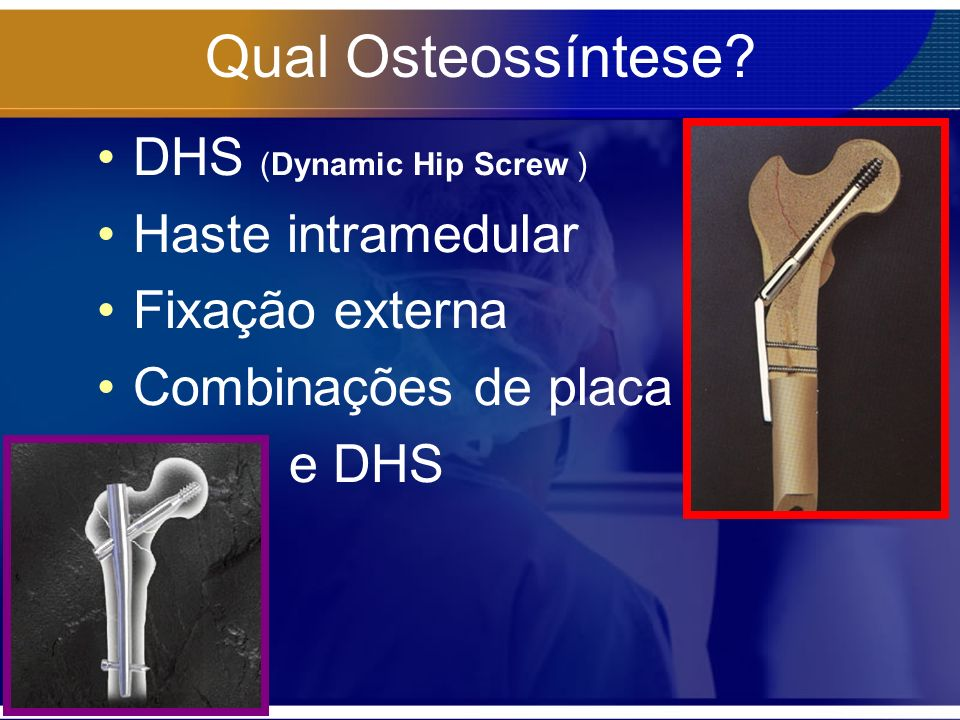 Qual Osteossíntese DHS (Dynamic Hip Screw ) Haste intramedular