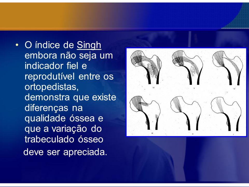 O índice de Singh embora não seja um indicador fiel e reprodutível entre os ortopedistas, demonstra que existe diferenças na qualidade óssea e que a variação do trabeculado ósseo