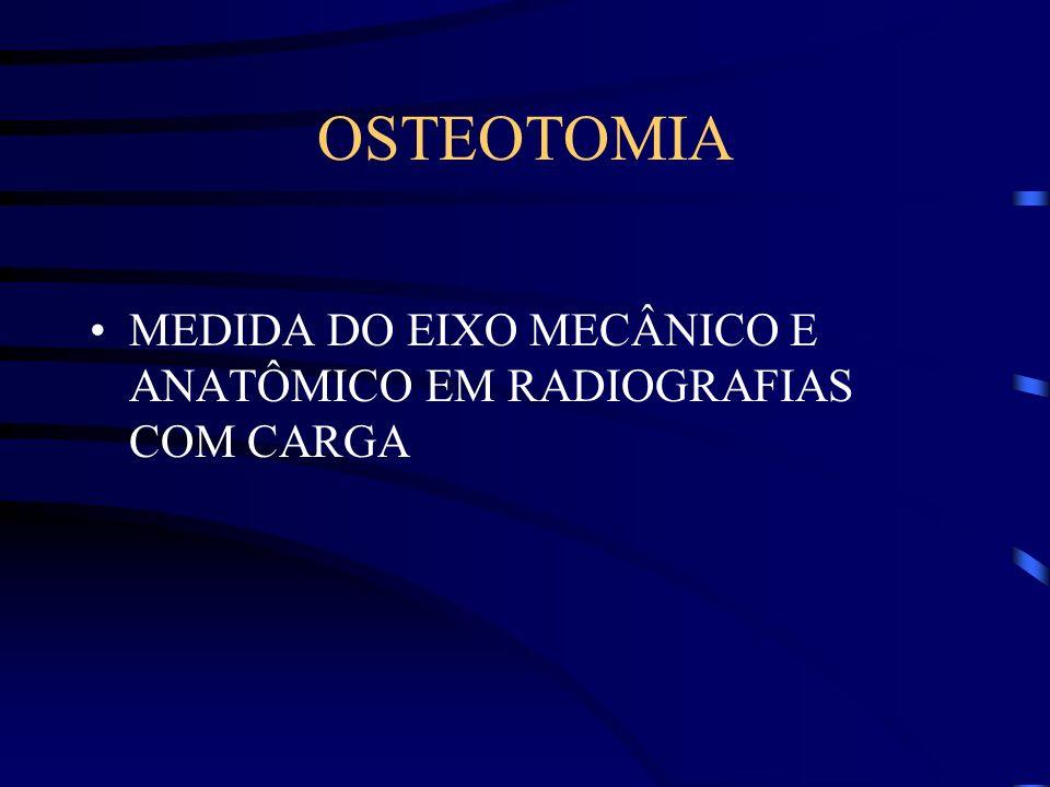 OSTEOTOMIA MEDIDA DO EIXO MECÂNICO E ANATÔMICO EM RADIOGRAFIAS COM CARGA
