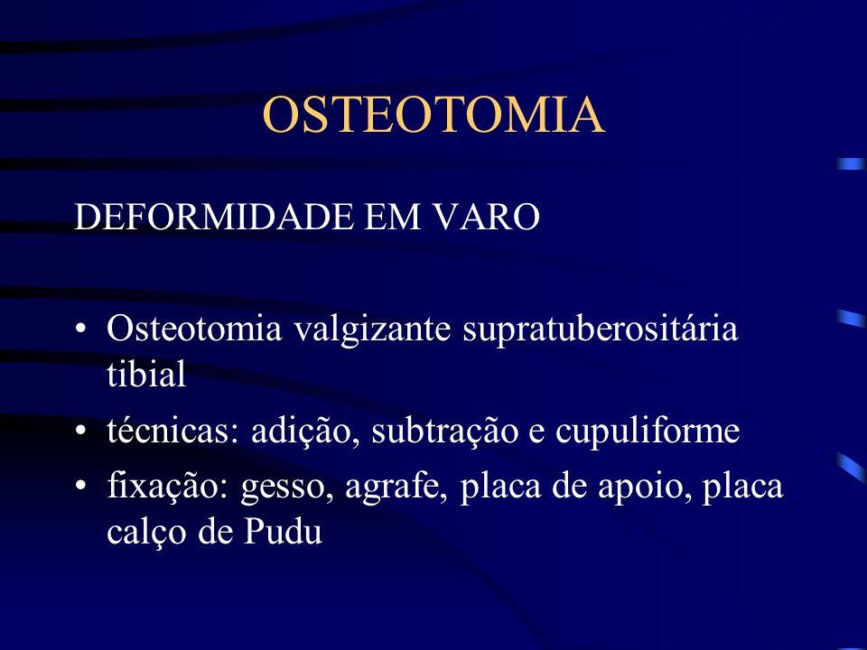 OSTEOTOMIA DEFORMIDADE EM VARO