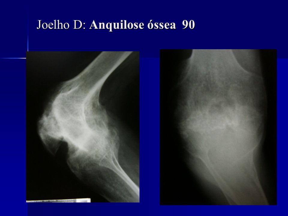 Joelho D: Anquilose óssea 90